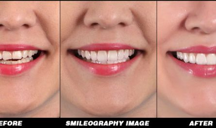 Smileography Before and After 1