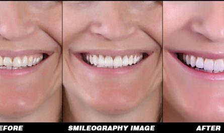 Smileography Before and After 2