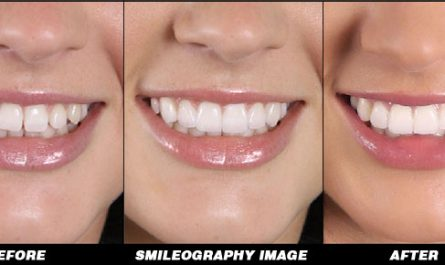 Smileography Before and After 3