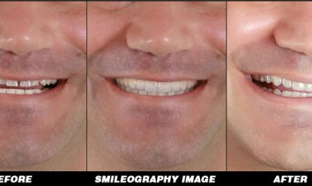 Smileography Before and After 4