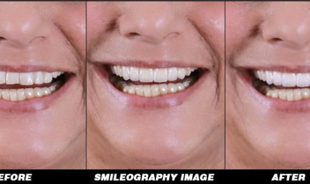 Smileography Before and After 5