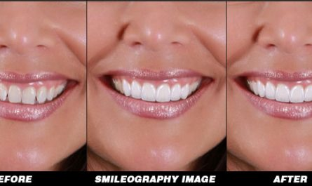 Smileography Before and After 6